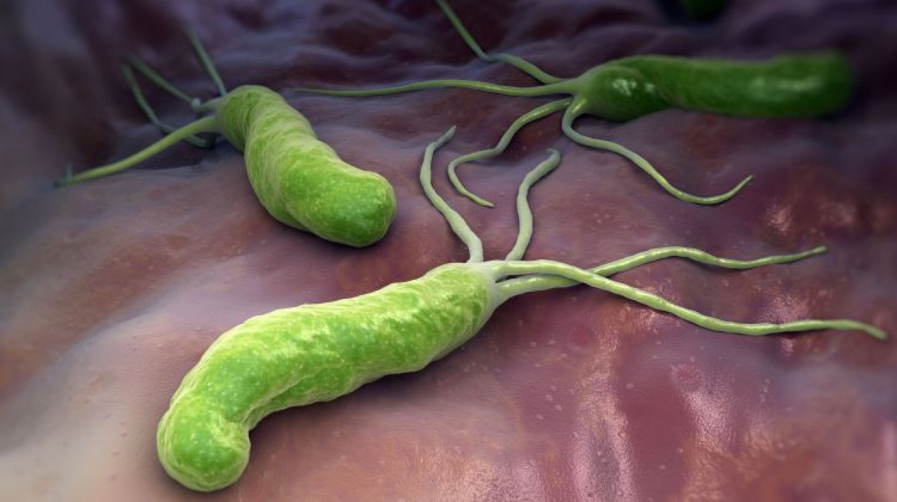 A Helicobacter pylori